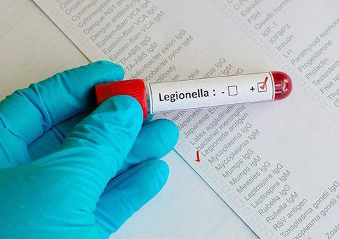 legionaire's disease